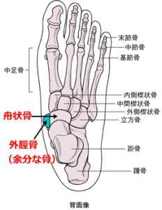 外脛骨の痛み