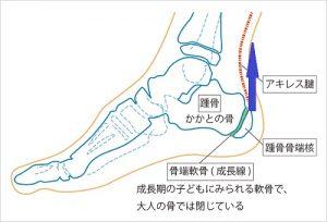 セーバー病の図