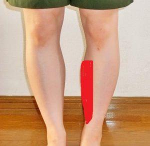 シンスプリントは足のすねの内側が痛みます