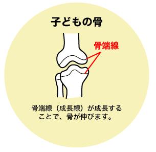 子どもの骨には骨端線があり成長します