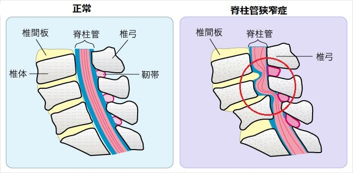 脊柱管狭窄症の病変